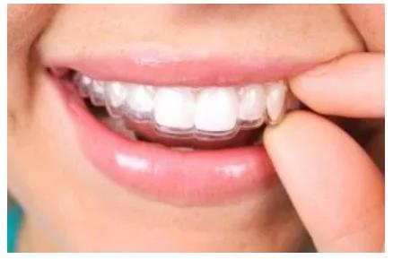 Ttrattamento ortodontico Invisalign