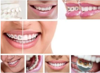 Ortodonzia invisibile linguale