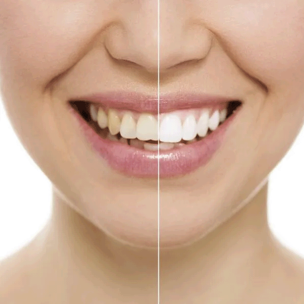 Odontoiatria conservativa ed Endonzia